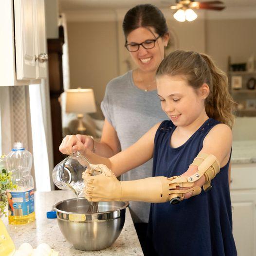 Diapo 4 : Photo d'une fille avec une prothèse de bras Unlimited Tomorrow qui cuisine avec sa mère
