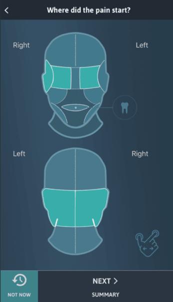 Diapo 3 : Page de l'application Migraine Buddy, où l'utilisateur indique où la douleur a commencé.