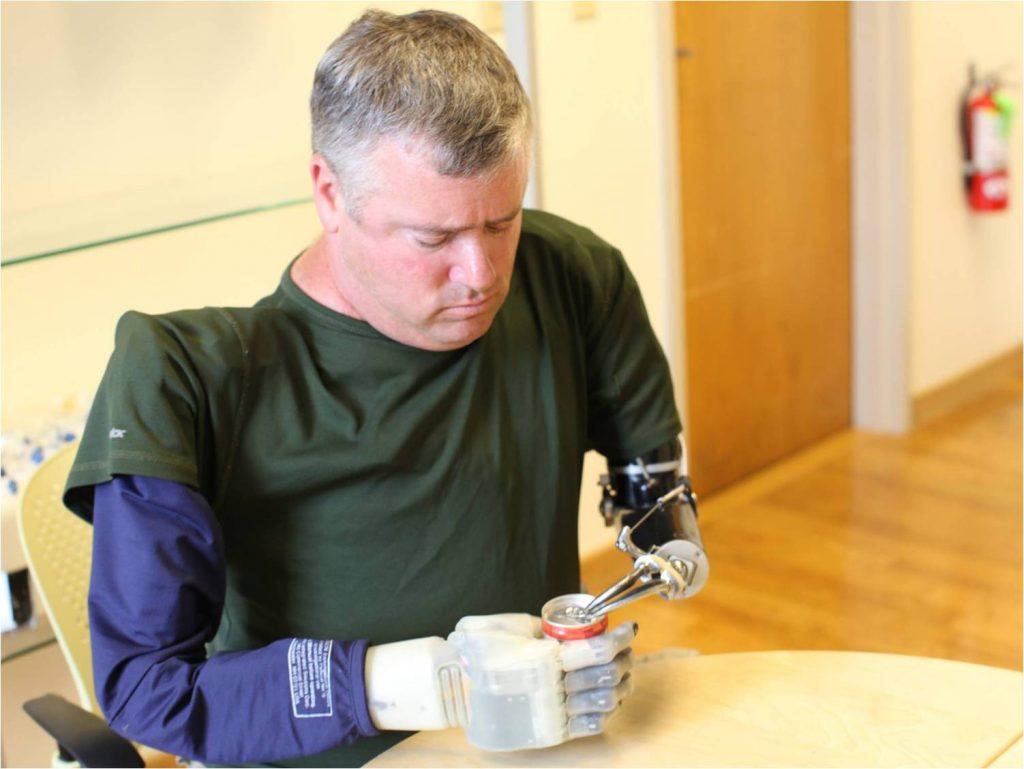 Diapo 3 : Revolutionizing-Prosthetics exemple de prothèse