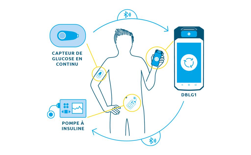 Diapo 5 : Image du fonctionnement de Diabeloop