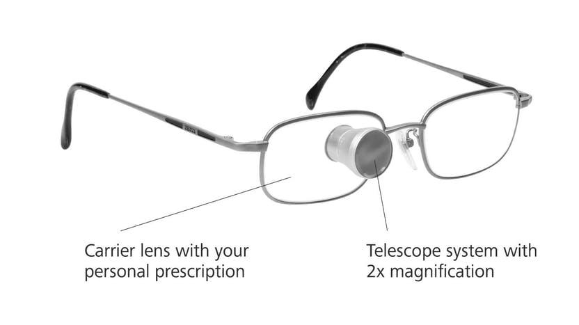 Diapo 4 : Photo du dispositif Zeiss G2 Bioptics sur un verre de lunette où il y a écrit ' verres porteurs avec votre prescription personnelle' et 'système de télescope avec grossissement 2 fois'