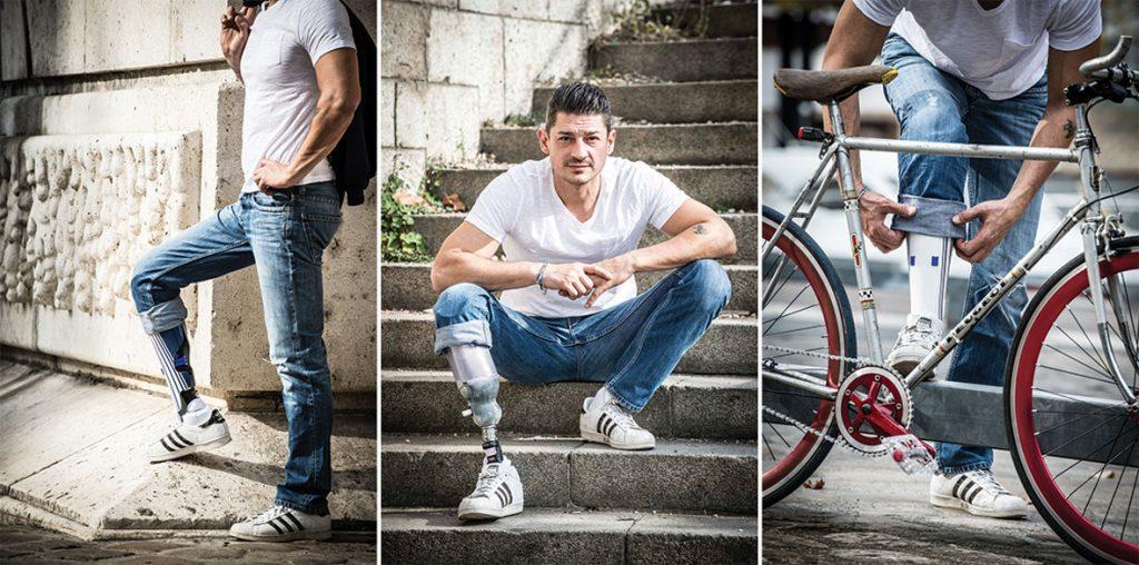 Diapo 4 : photo représentant un homme avec une prothèse ocver studio