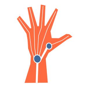 Diapo 3 : photo qui représente une main bionique