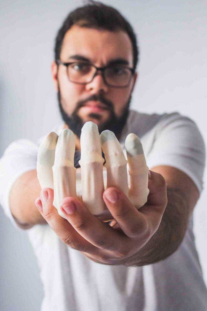 Diapo 5 : Un utilisateur de la prothèse en gros plan.