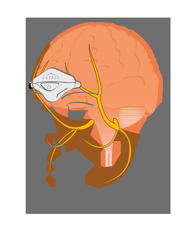 Diapo 3 : Dessin représentant l'impact de Cefaly sur le cerveau