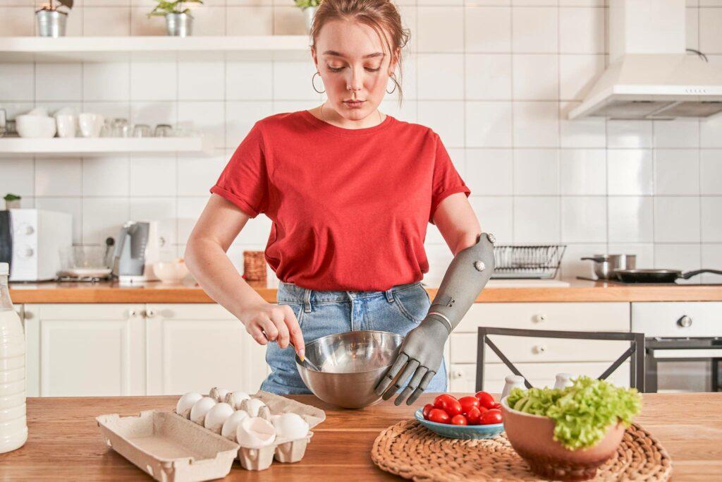 Diapo 5 : Femme ayant une prothèse au bras qui cuisine