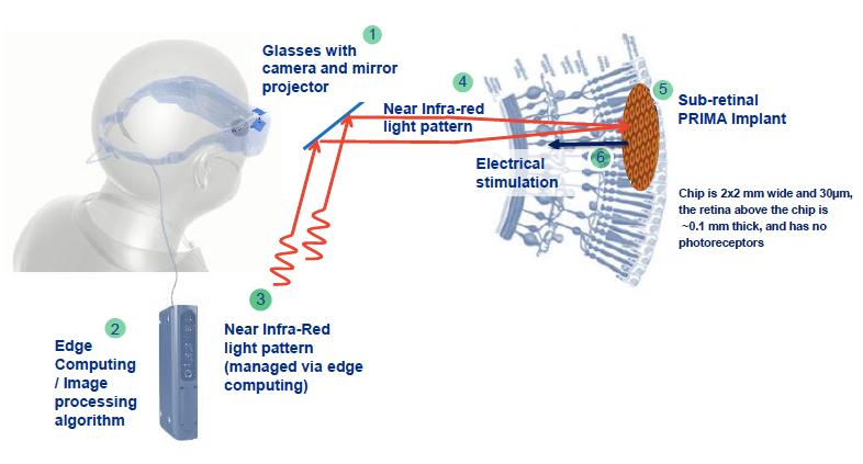 Diapo 3 : Un schéma en anglais d'explication de comment fonctionne Prima : les lunettes et caméra interprète les images grace au petit ordinateur embarqué, les faisceaux infrarouges ainsi créé stimule électriquement la rétine artificielle qui envoie donc des informations au cerveau