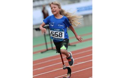 Diapo 5 : Petite fille unijambiste courant avec une prothèse